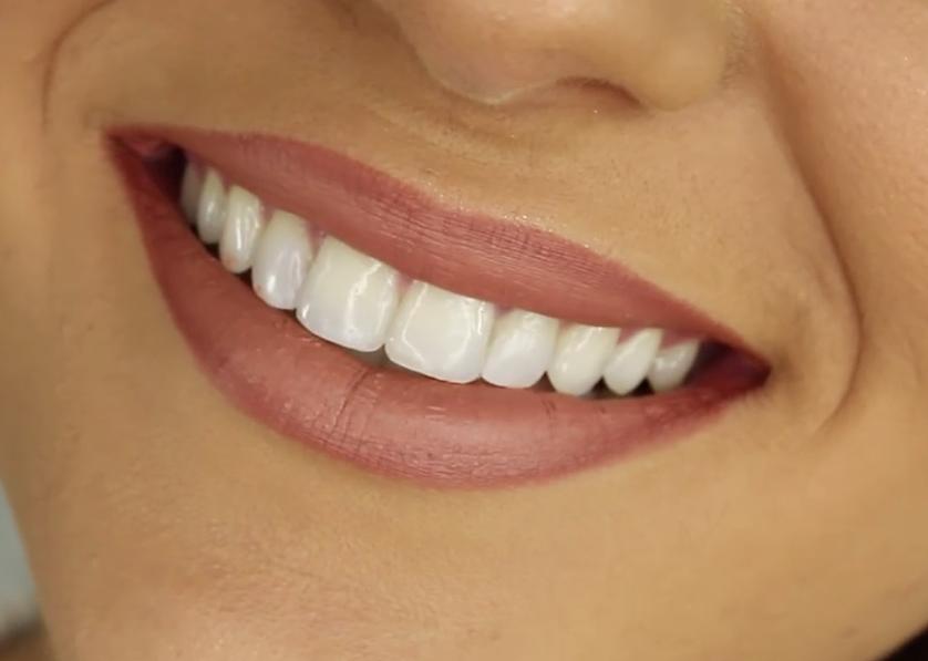Trucuri pentru a avea dinți albi și un zâmbet de Hollywood