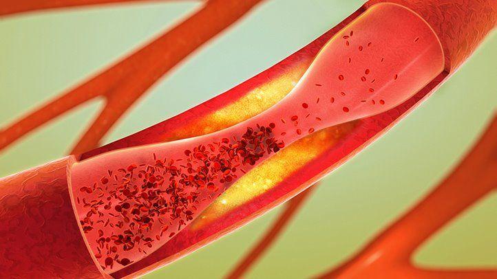 prevenirea cheagurilor de sânge în varicoză